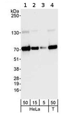 Western blot - Anti-PPM1G antibody (ab70794)