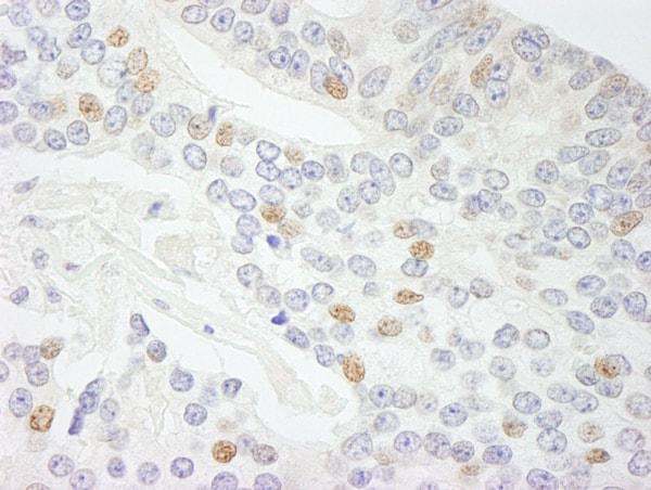 Immunohistochemistry (Formalin/PFA-fixed paraffin-embedded sections) - Anti-CIA antibody (ab70831)
