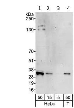 Western blot - Anti-MIS12 antibody (ab70843)