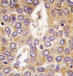 Immunohistochemistry (Formalin/PFA-fixed paraffin-embedded sections) - Anti-Casein Kinase 1 gamma 2  antibody (ab70862)