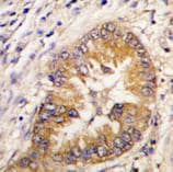 Immunohistochemistry (Formalin/PFA-fixed paraffin-embedded sections) - Anti-Borealin/CDCA8 antibody (ab70910)