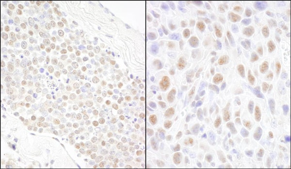 Immunohistochemistry (Formalin/PFA-fixed paraffin-embedded sections) - Anti-BCAS2 antibody (ab71161)