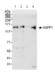 Western blot - Anti-ASPP1 antibody (ab71163)
