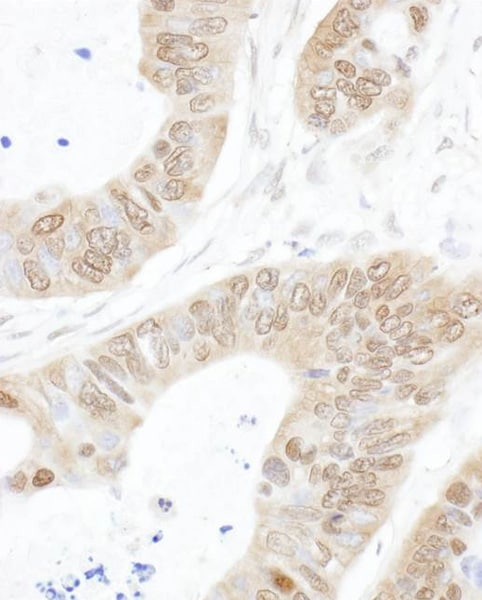 Immunohistochemistry (Formalin/PFA-fixed paraffin-embedded sections) - Anti-USP14/TGT antibody (ab71165)