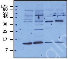 Western blot - Anti-Methionine Sulfoxide Reductase B antibody (ab71175)