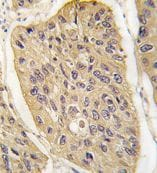 Immunohistochemistry (Formalin/PFA-fixed paraffin-embedded sections) - Anti-WIF1 antibody - N-terminal (ab71204)