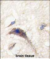 Immunohistochemistry (Formalin/PFA-fixed paraffin-embedded sections) - Anti-DAAM1 antibody (ab71327)