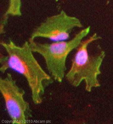 Immunocytochemistry/ Immunofluorescence - Anti-Talin 1 antibody (ab71333)