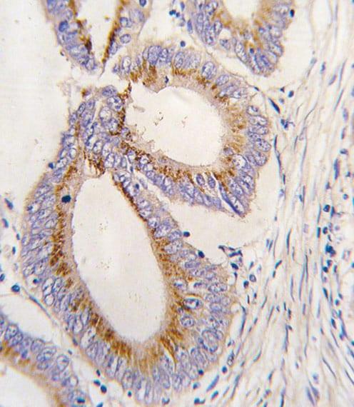 Immunohistochemistry (Formalin/PFA-fixed paraffin-embedded sections) - Anti-BMP11 antibody (ab71347)