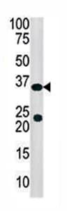 Western blot - Anti-SULT4A1 antibody - Aminoterminal end (ab71354)