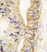 Immunohistochemistry (Formalin/PFA-fixed paraffin-embedded sections) - Anti-Cadherin 7 antibody - N-terminal (ab71412)