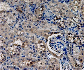 Immunohistochemistry (Formalin/PFA-fixed paraffin-embedded sections) - Anti-IL-18 antibody (ab71495)