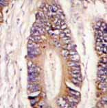 Immunohistochemistry (Formalin/PFA-fixed paraffin-embedded sections) - Anti-MLK4 antibody - N-terminal (ab71510)