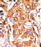 Immunohistochemistry (Formalin/PFA-fixed paraffin-embedded sections) - Anti-GK2 antibody - C-terminal (ab71529)