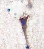 Immunohistochemistry (Formalin/PFA-fixed paraffin-embedded sections) - Anti-APPBP1 antibody - N-terminal (ab71542)