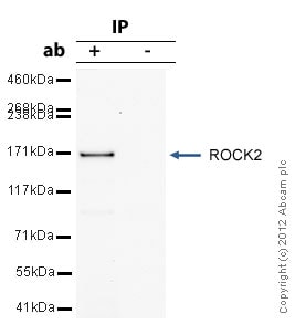 Immunoprecipitation - Anti-ROCK2 antibody (ab71598)