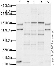 Western blot - Anti-ROCK2 antibody (ab71598)