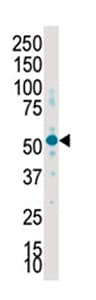Western blot - Anti-SGK2 antibody - Carboxyterminal end (ab71616)