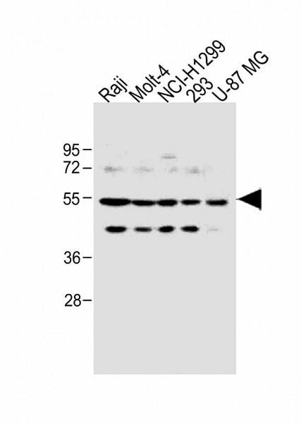 Western blot - Anti-PFKFB4 antibody (ab71622)