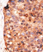 Immunohistochemistry (Formalin/PFA-fixed paraffin-embedded sections) - Anti-APOBEC3G / A3G antibody (ab71634)