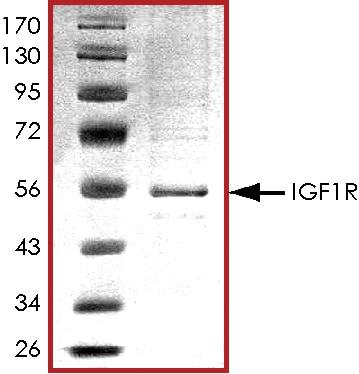 SDS-PAGE - Recombinant human IGF1 Receptor protein (ab71657)