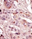 Immunohistochemistry (Formalin/PFA-fixed paraffin-embedded sections) - Anti-SRMS antibody - N-terminal (ab71675)