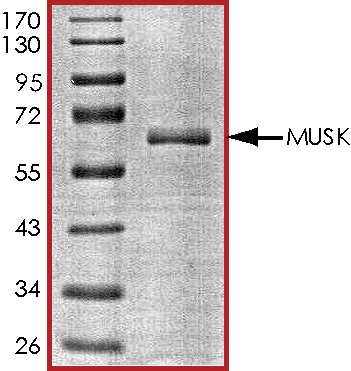 SDS-PAGE - Recombinant human MUSK protein (ab71693)