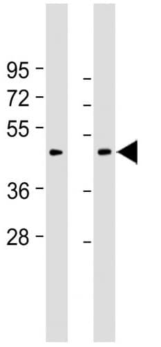 Western blot - Anti-GDF8 / Myostatin antibody (ab71808)