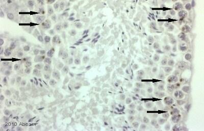 Immunohistochemistry (Formalin/PFA-fixed paraffin-embedded sections) - Anti-BRD1/BRL antibody (ab71877)