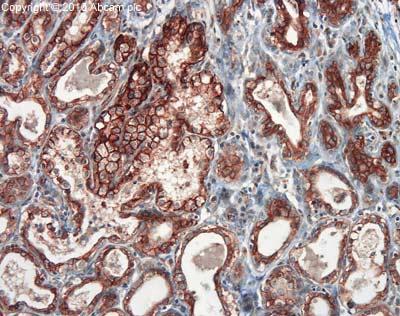 Immunohistochemistry (Formalin/PFA-fixed paraffin-embedded sections) - Anti-EpCAM antibody (ab71916)