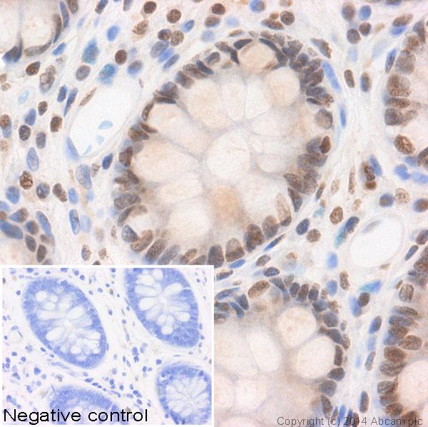 Immunohistochemistry (Formalin/PFA-fixed paraffin-embedded sections) - Anti-Histone H3 (acetyl K56) antibody (ab71956)