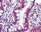 Immunohistochemistry (Formalin/PFA-fixed paraffin-embedded sections) - Anti-SR1 antibody (ab71983)