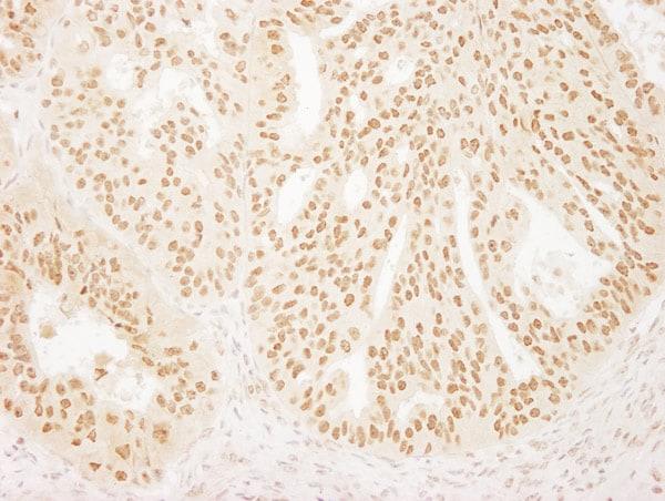Immunohistochemistry (Formalin/PFA-fixed paraffin-embedded sections) - Anti-BPTF / FALZ antibody (ab72036)