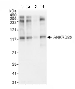 Western blot - Anti-ANKRD28 antibody (ab72037)