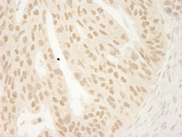 Immunohistochemistry (Formalin/PFA-fixed paraffin-embedded sections) - Anti-delta 1 Catenin/CAS antibody (ab72039)