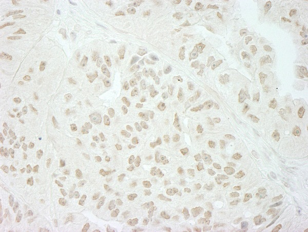 Immunohistochemistry (Formalin/PFA-fixed paraffin-embedded sections) - Anti-SFRS8 antibody (ab72044)