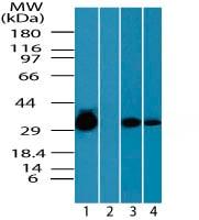 Western blot - Anti-CCDC50 antibody (ab72082)