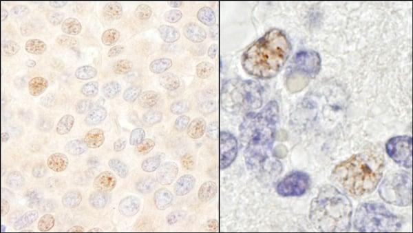 Immunohistochemistry (Formalin/PFA-fixed paraffin-embedded sections) - Anti-DDX46 antibody (ab72083)