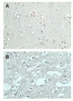 Immunohistochemistry (Formalin/PFA-fixed paraffin-embedded sections) - Anti-FMNL2 antibody (ab72105)