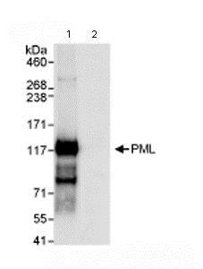 Immunoprecipitation - Anti-PML Protein antibody (ab72137)