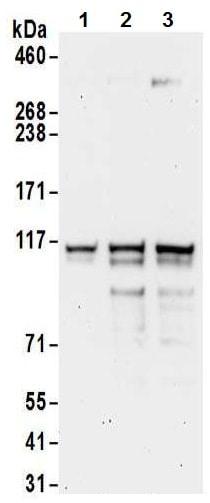Western blot - Anti-XRN2 antibody (ab72181)