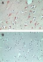 Immunohistochemistry (Formalin/PFA-fixed paraffin-embedded sections) - Anti-FAM3C/ILEI antibody (ab72182)