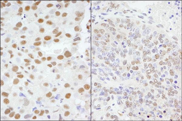 Immunohistochemistry (Formalin/PFA-fixed paraffin-embedded sections) - Anti-AKAP 95 antibody (ab72196)