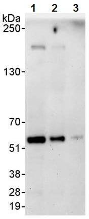 Western blot - Anti-Coronin 1a/TACO antibody (ab72212)