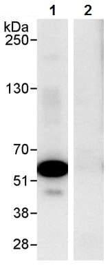 Immunoprecipitation - Anti-Coronin 1a/TACO antibody (ab72212)