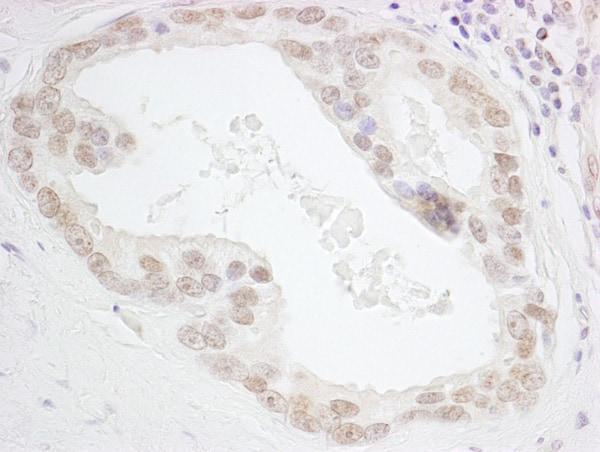 Immunohistochemistry (Formalin/PFA-fixed paraffin-embedded sections) - Anti-HMGN3 antibody (ab72233)