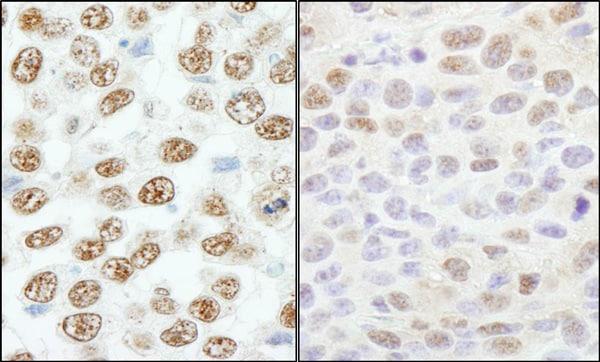 Immunohistochemistry (Formalin/PFA-fixed paraffin-embedded sections) - Anti-RBM25 antibody (ab72237)