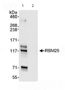 Immunoprecipitation - Anti-RBM25 antibody (ab72237)