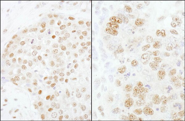 Immunohistochemistry (Formalin/PFA-fixed paraffin-embedded sections) - Anti-CPSF73 antibody (ab72295)