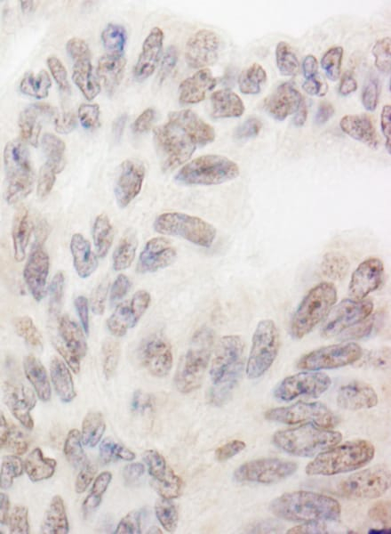 Immunohistochemistry (Formalin/PFA-fixed paraffin-embedded sections) - Anti-SWAN antibody (ab72319)